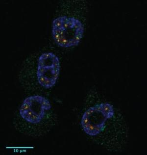 Green shows the localization of CPEB1 in four tumor cells and blue the nuclei (Credit: © Bava, Méndez, IRB Barcelona)