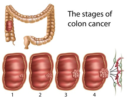 The stages of colon cancer (Credit: thecolorectalinstitute.com)