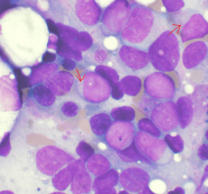 Bone marrow aspirate showing acute myeloid leukemia. Several blasts have Auer rods. (Credit: Wikipedia)