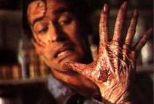 Alien Hand Syndrome - a weird neurobiological problem
