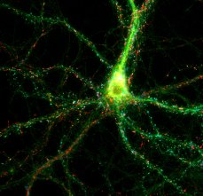 Working to make Alzheimer's a distant memory