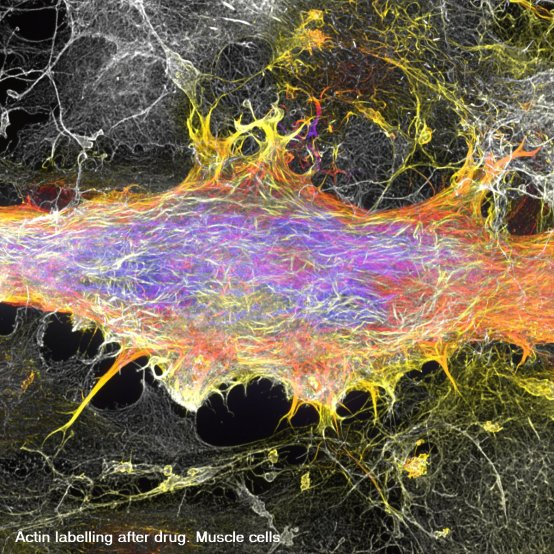 actin-muscle-cells