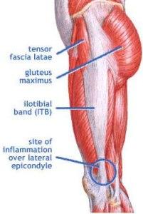 Iliotibial-band-syndrome
