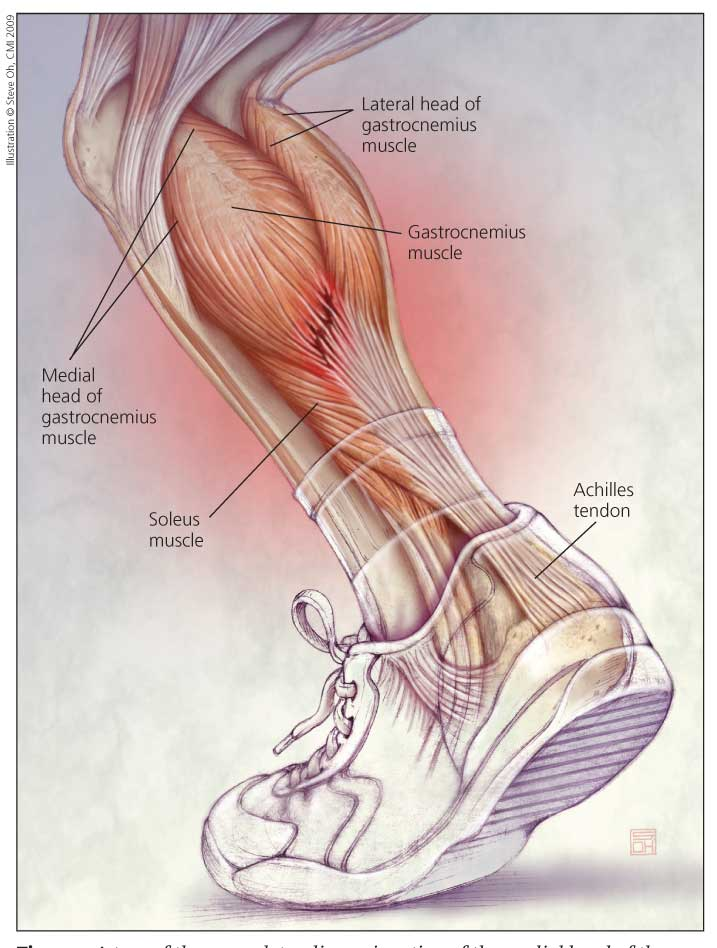 Know Your Muscles – Gastrocnemius. - SBR Sport.