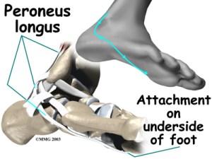 peroneal foot
