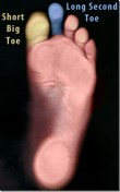 morton foot
