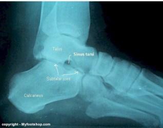 pronation x ray