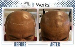 receding hair loss treatment