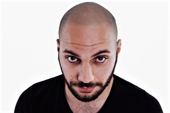man with new smp hairline scalp design