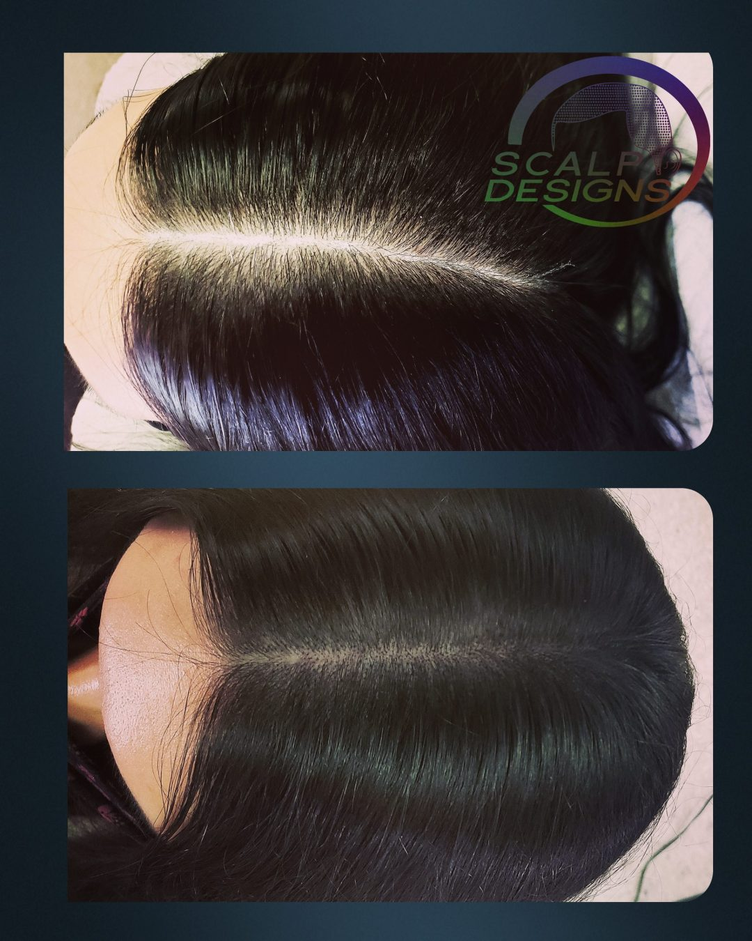 smp before and after long hair middle part