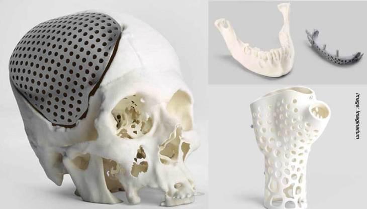 3D Printing in Medicine Field