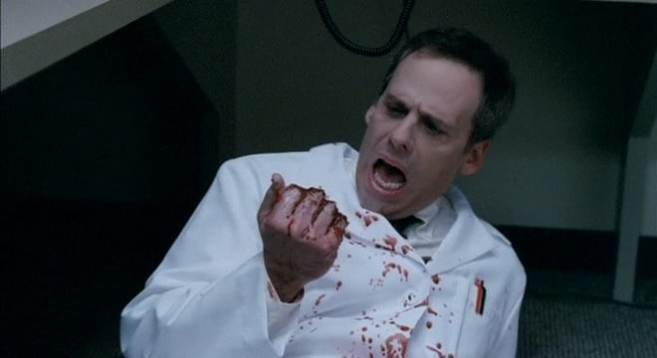 Dr. Godfrey (Josh Pais) got too handsy, now he's not so handsy, in Teeth (2007)