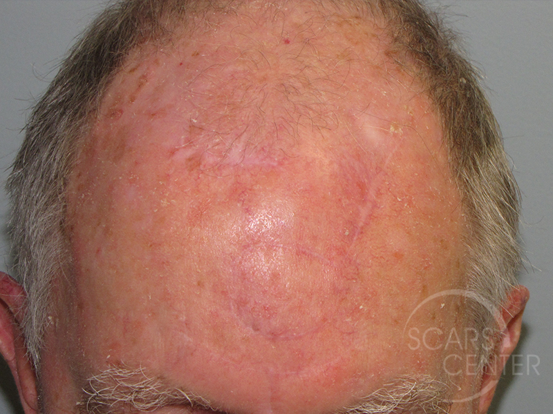 Cell Basal Forehead Carcinoma Mohs