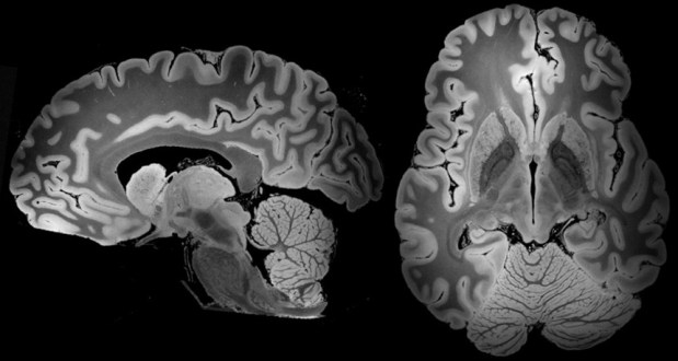 3D view of an entire human brain taken by MRI, shown from two angles.