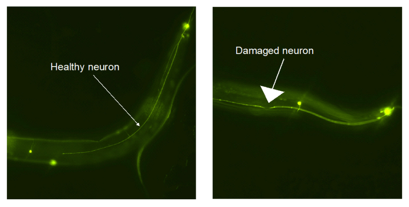 a microscope image of neurons in two c. elegans worms. One is a smooth, healthy neuron. One has a damaged neuron that has a break in it.