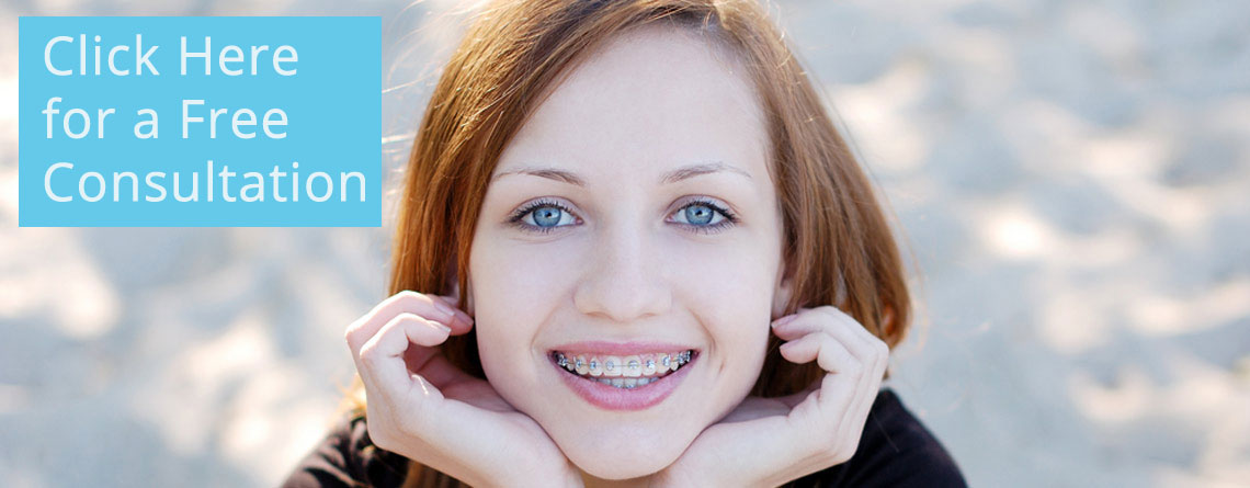 free-consultation-braces