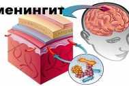 Метипред и преднизолон соотношение доз. Что лучше: длительно принимать преднизолон или быстро его отменить