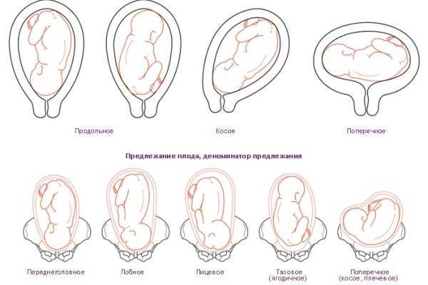Как лежит ребенок в утробе матери