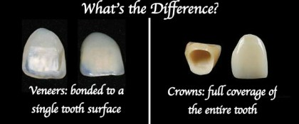 Crown versus veneer