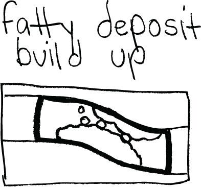fattydeposit
