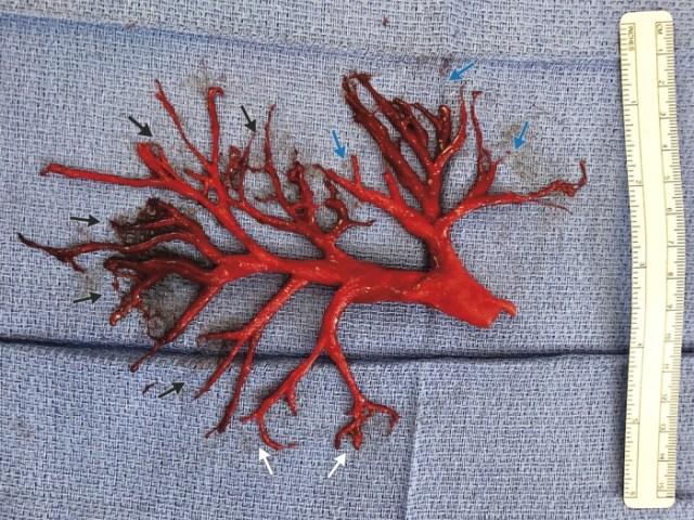 blood clot inset 700