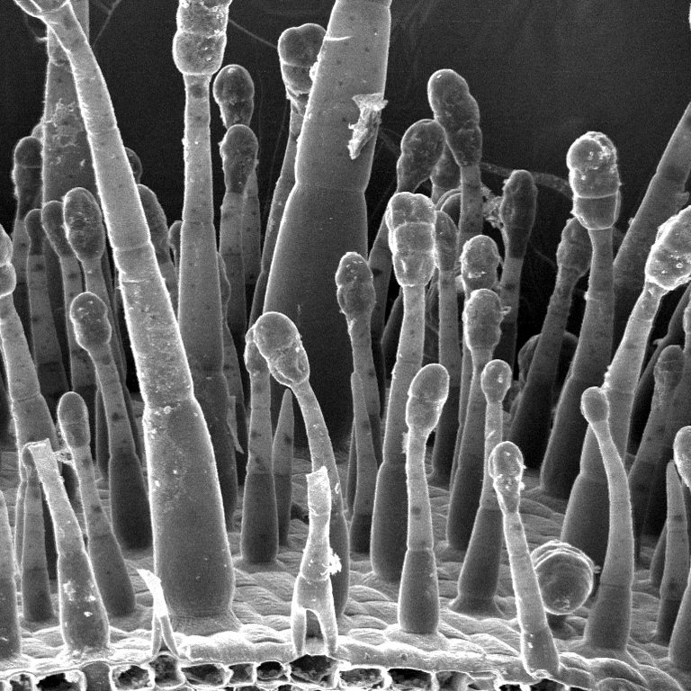 Electron Microscopy Lab - Tobacco Leaf