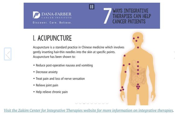 Dana Farber on acupuncture
