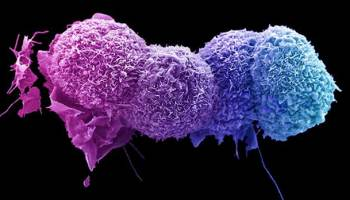 Science Surgery: 'Why do some cancers metastasise, but others don't?'