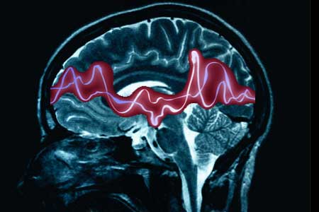 Study finds superior drug combo for difficult-to-control epilepsy