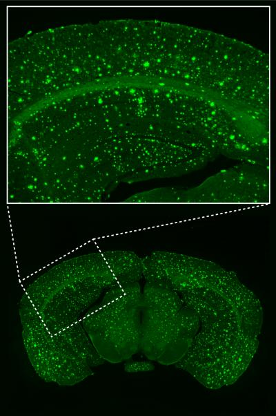 These are microscopic images of a brain section (bottom: overview. top: enlarged view of the visual cortex), obtained from an APP23xPS45 Alzheimer mouse, in which the beta-amyloid plaques are labeled with Thioflavin-S.