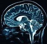 Neurofeedback helps deal with depression