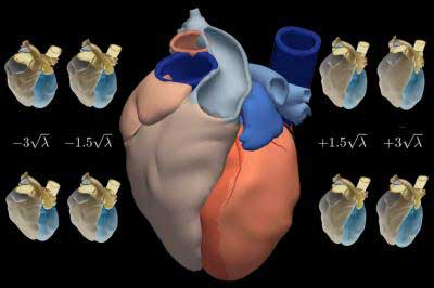 Cheaper heart attack drugs could improve outcomes, save health budgets