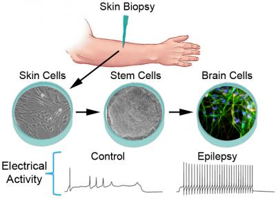 Epilepsy in a dish: Clues to disease's origins, possible treatment