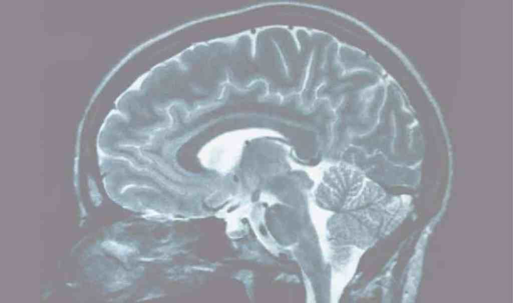 New research suggests connection between white matter and cognitive health