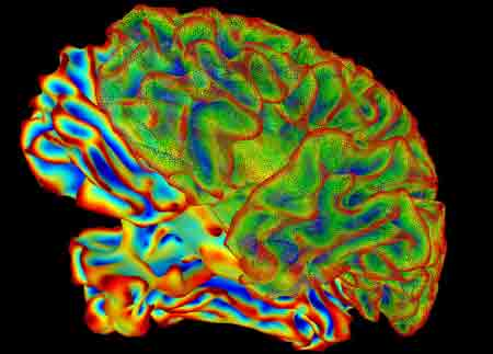 New Study Decodes Brain's Process for Decision Making