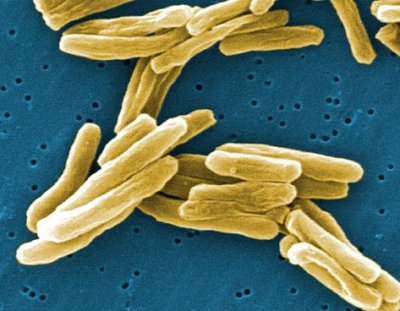 Tuberculosis and Parkinson's Disease Linked By Unique Protein