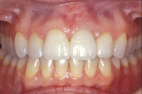 Gum disease bacteria facilitates rheumatoid arthritis