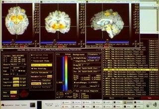 How schizophrenia affects the brain