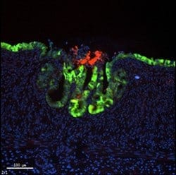 Stem cells converted to living intestinal patches
