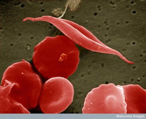 Chemist Discovers New Way to Stabilize Blood Protein