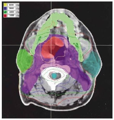 More targeted radiation ups survival in head, neck cancer patients