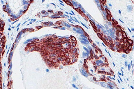 Surprising new way to kill cancer cells