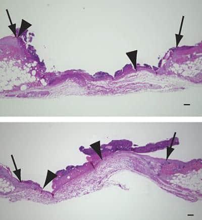 Understanding aspirin's effect on wound healing