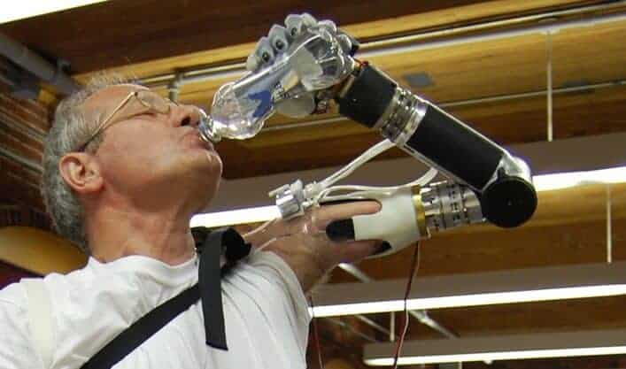 FDA approves first prosthetic arm that translates muscle signals to perform complex tasks