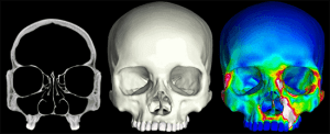 "X-ray CT ""slices"" were used to construct 3D finite element models of human crania. The models were then subjected to a series of mechanical analyses that simulate feeding."