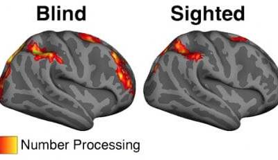 In blind people, brain's vision center plays role in solving math problems