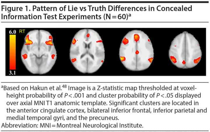 Illuminating lies with brain scan outshines polygraph test