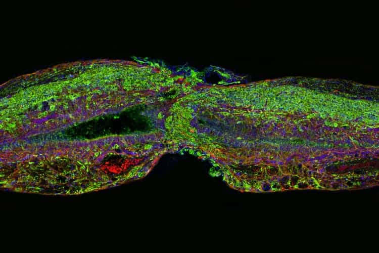 Scientists Find Key Protein For Spinal Cord Repair