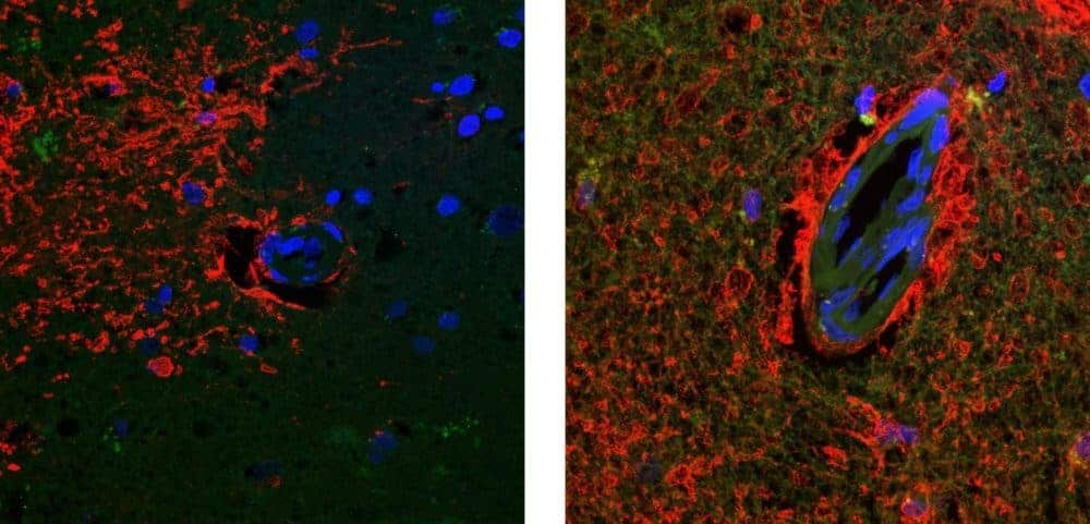 study-suggests-possible-new-target-for-treating-and-preventing-alzheimers