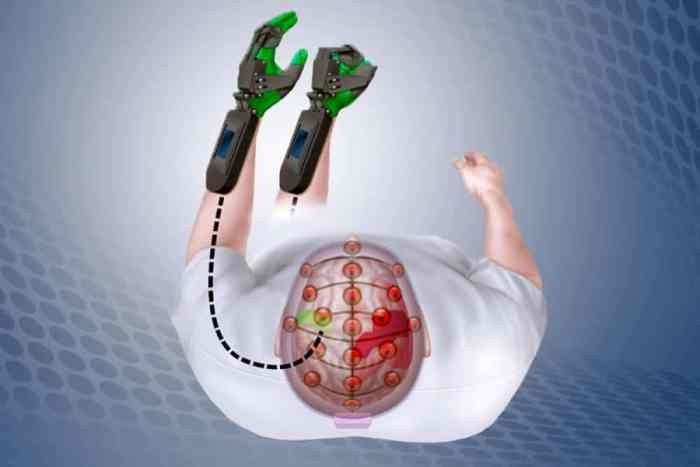 Mind-controlled device helps stroke patients retrain brains to move paralyzed hands